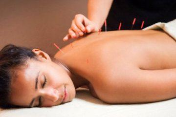 Acupuncture - Βελονισμός